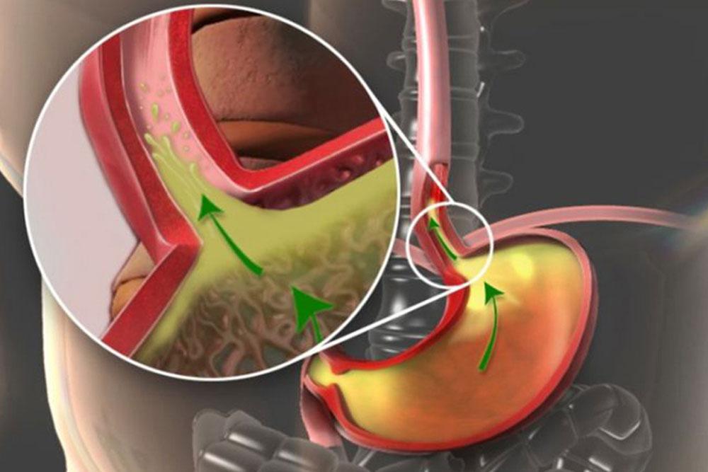 3DAnatomica Applications, Consumer Health