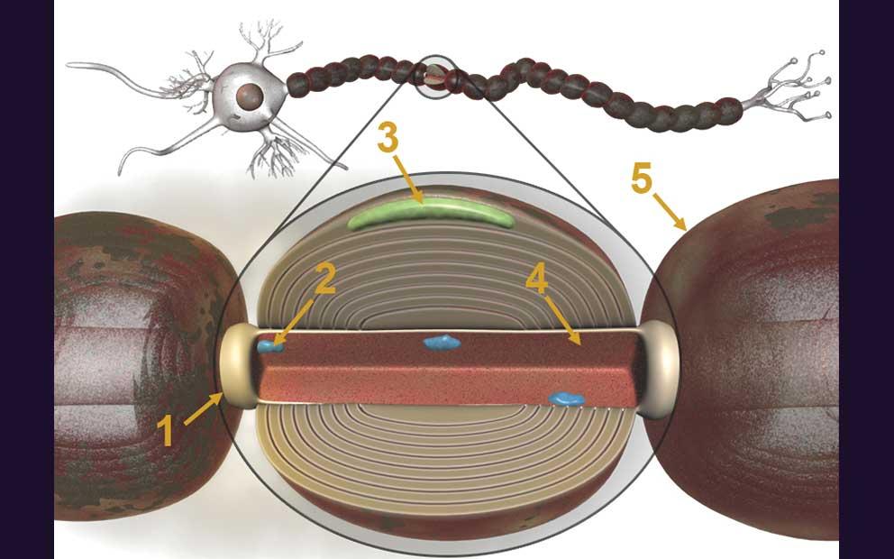 3DAnatomica, Clinician Media, Multiple Sclerosis